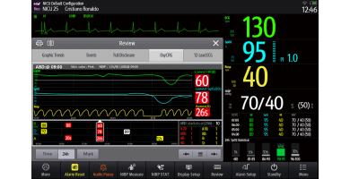 Monitorowanie i analiza epizodów bezdechu, bradykardii i desaturacji (ABD) w monitorach pacjenta BeneVision serii N oraz ePM
